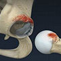 Femeroacetabular Impingement Surgery